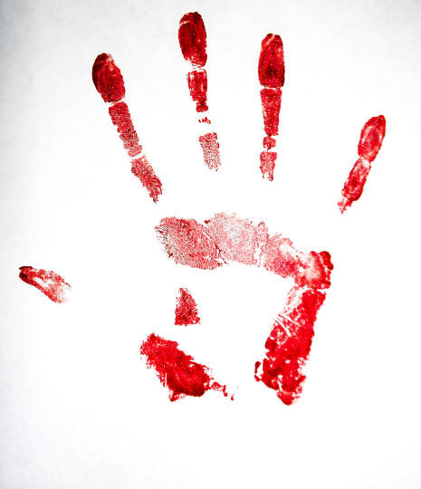 Red paint hand- injuries from painting